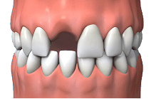 Periodontal Treatment North London | Southgate Dental Care