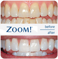 Teeth Whitening North London