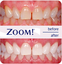 Tooth Whitening Southgate