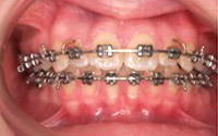 Fixed Braces Southgate